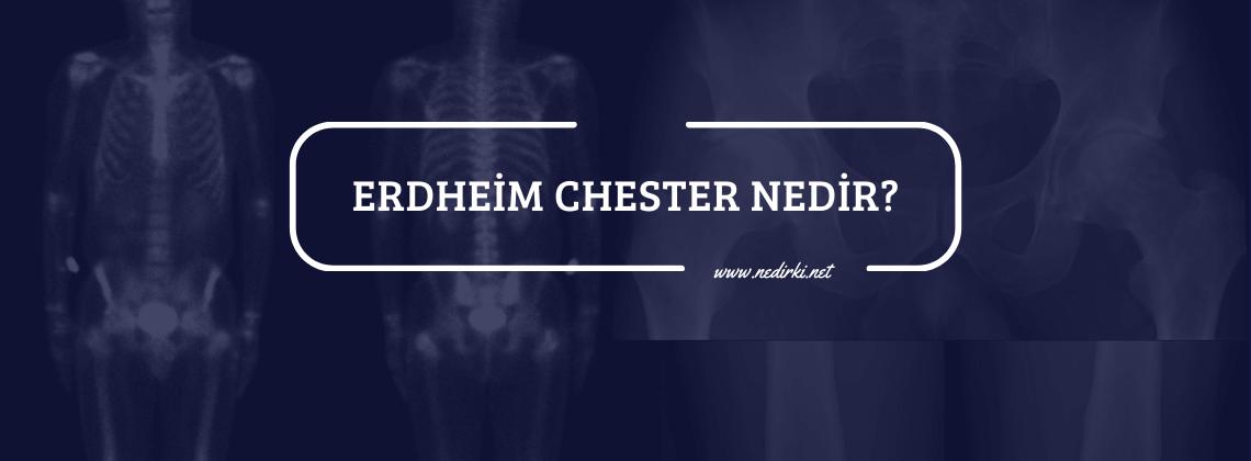ercheim-chester-hastaligi-tedavisi